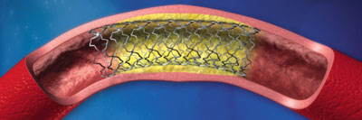 Stent placed to hold open artery